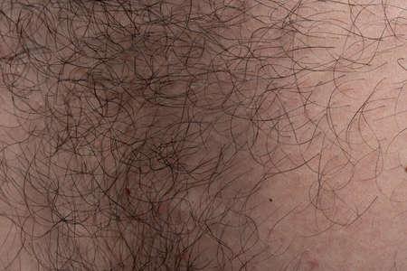 Photo pour Photo of humans skin texture with black hairs, macro shooting - image libre de droit