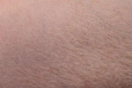 Photo pour Texture of humans skin with the scar burn - image libre de droit