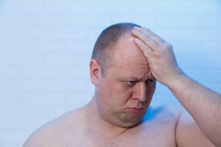 Photo pour Portrait of a bald man who holds his head. - image libre de droit