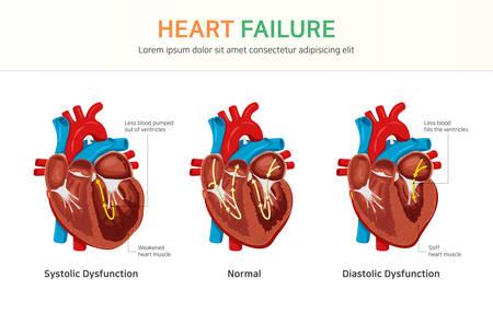 Illustration pour Heart failure or congestive heart failure - image libre de droit
