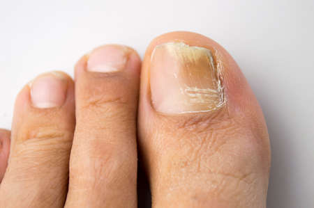 onychomycosis with fungal nail infection