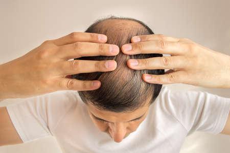 Foto de close up of man controls hair loss - Imagen libre de derechos