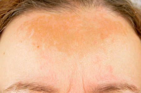 Photo pour closeup of dermatitis on brow of woman with redness and skin blemishes  - image libre de droit