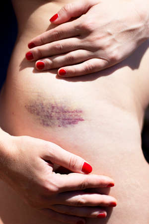 Photo pour A bruise on the skin, hips,  woman touching, showing her bruise with red nail polish, abusive, toxic relationship concept, violence - image libre de droit