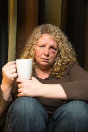 a middle aged woman with a black eye looks sad and intropsective.
