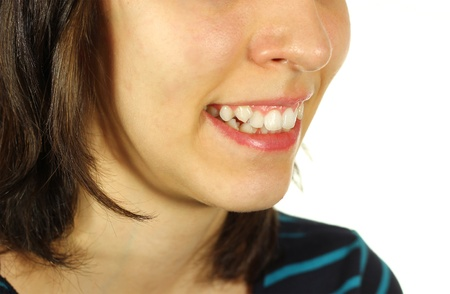 Girl with crooked teeth smiling