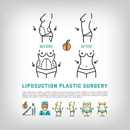 Vector of Liposuction and tummy tuck, - ID:65327038