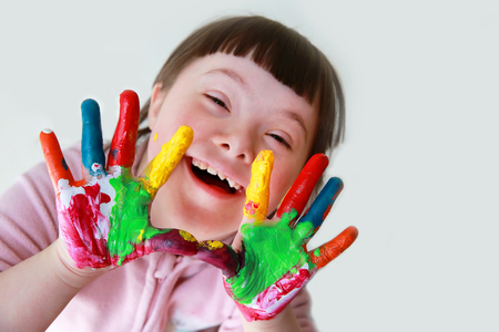 Foto de Cute little down syndrome girl with painted hands. - Imagen libre de derechos