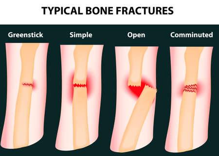 Typical bone fractures  Vector scheme
