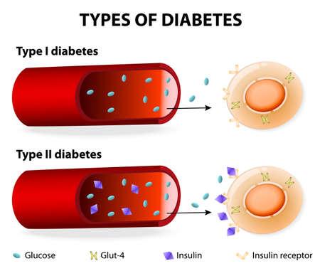 Illustration pour Types of Diabetes. Type 1 and Type 2 Diabetes Mellitus. Insulin-Dependent Diabetes Mellitus and Non Insulin-Dependent Diabetes Mellitus. Insulin resistance and insufficient insulin production. - image libre de droit