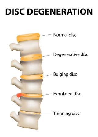 Disc degeneration it