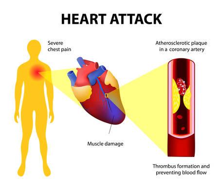 Anatomy of a heart attack diagram of a myocardial infarction item description ccuart Choice Image