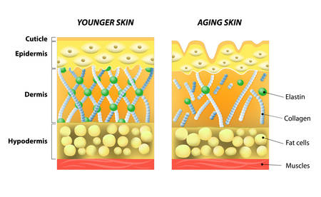 younger skin and aging skin. elastin and collagen. A diagram of younger skin and aging skin showing the decrease in collagen and broken elastin in older skin.