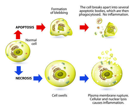 Illustration pour Apoptotic versus necrotic morphology. Apoptosis and necrosis is a form of cell death. Structural changes Of cells undergoing necrosis or apoptosis. Schematic Representation Of The Process Apoptosis and necrosis. Apoptosis is triggered by normal, healthy p - image libre de droit