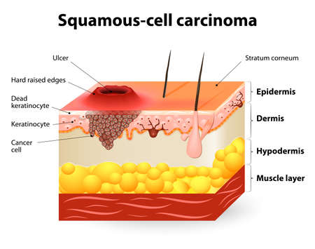 Squamous-cell carcinoma or squamous cell cancer.