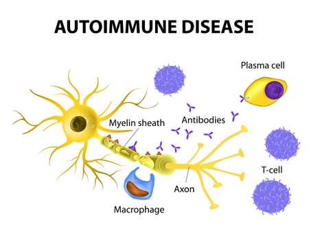 Autoimmune Disease. Multiple sclerosis - Immune cells attack the myelin sheath that surrounds nerve cells.  Antibodies initiate myelin injury (macrophage activation).