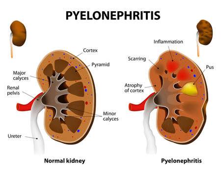 Illustration pour Pyelonephritis. Normal kidney and Chronic Pyelonephritis. - image libre de droit