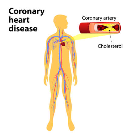 Coronary heart disease is a condition in which the heart's arteries become narrower. coronary artery disease. human vascular system on silhouettes of men. Cholesterol plaque in artery. Illustration with annotation