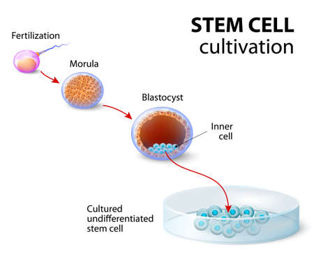 Stem cell cultivation. In Vitro Fertilization of the egg by a sperm outside the body. After several days they develop intoundifferentiated stem cells.
