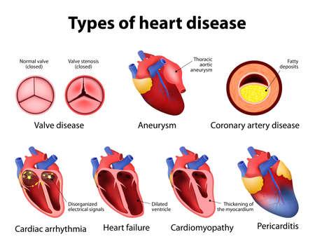 heart disease: valve disease, aneurysm, coronary artery disease, cardiac arrhythmia, heart failture, cardiomyopathy and pericarditis
