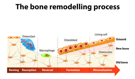 The bone remodeling process involves the following steps: resorption, reversal, formation, mineralization and resting. In a healthy body, osteoclasts and osteoblasts work together to maintain the balance between bone loss and bone formation.