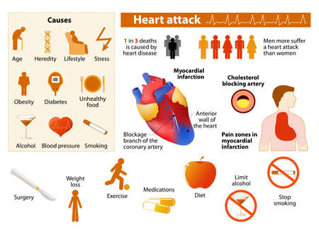 Heart attack infographics in low color style. Isolated icon and object Heart disease factors. Medical Infographic set elements and symbols for design.