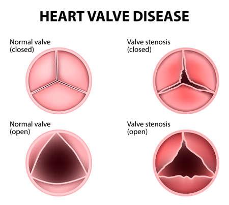 Ilustración de Valvular heart disease - Imagen libre de derechos