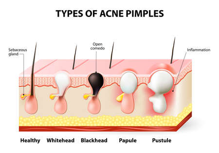 types of acne pimples  healthy skin, whiteheads and blackheads, papules and  pustules