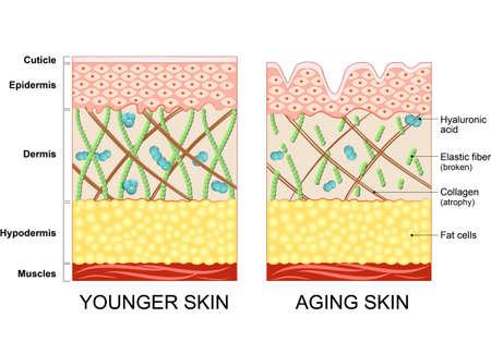 Illustration pour younger skin and aging skin. elastin and collagen. A diagram of younger skin and aging skin showing the decrease in collagen and broken elastin in older skin. - image libre de droit