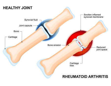 Illustration pour Normal Joint and Rheumatoid Arthritis. Rheumatoid Arthritis (RA)is an inflammatory type of arthritis that usually affects joint. auto immune disease. The body's immune system mistakenly attacks healthy tissue. - image libre de droit