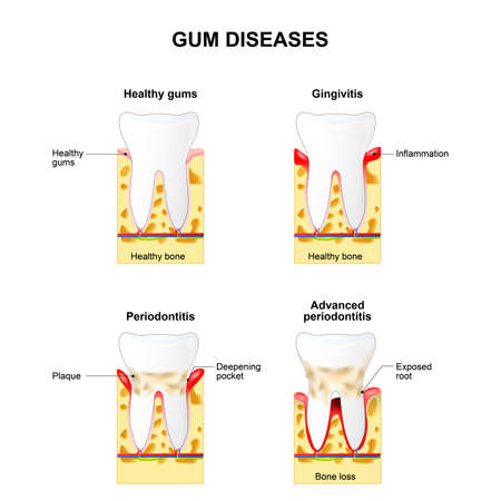 Illustration pour Gum disease: Gingivitis and Periodontitis. Gingivitis - the gums are swollen, bone is healthy. Periodontitis - the gums are swollen and the bone is also inflamed. - image libre de droit
