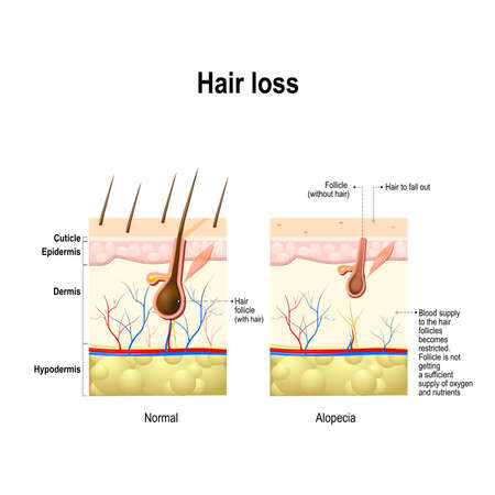 Illustration for Hair loss. Normal hair and Alopecia areata in the human skin. alopecia or baldness. Vector illustration - Royalty Free Image