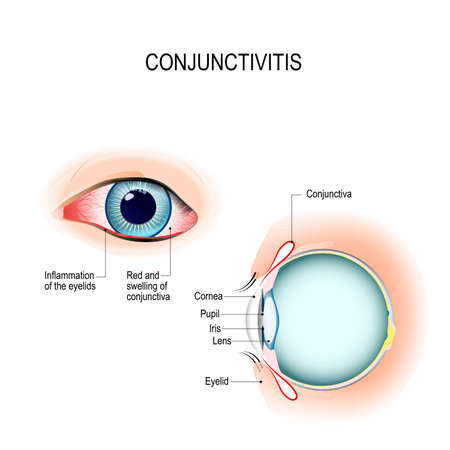 Conjunctivitis. pink eye (with inflammation). External View ... on cross section of the eye, flowchart of the eye, schematic eye retinoscopy, sagittal section of the eye, schematic section of the human eye, cutaway view of the eye, midsagittal section of the eye, transverse section of the eye, cross section diagram of eye,