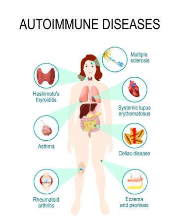 Illustration pour autoimmune diseases. Tissues of the human body affected by autoimmune attack. Disease and organs on silhouette woman. anatomic illustration - image libre de droit