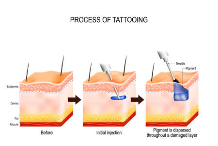 Illustration pour tattoo process. The tattooing process causes damage to the epidermis and dermis. Every time the needle penetrates, it causes a wound that alerts the body immune system. Pigment gets soaked up by skin cells and stay suspended in the dermis in perpetuity. - image libre de droit