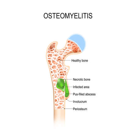 Illustration pour Osteomyelitis infection in the bone illustration. - image libre de droit