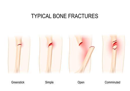 Illustration pour Typical bone fractures: Greenstick, Simple, Open, Comminuted. Vector scheme - image libre de droit