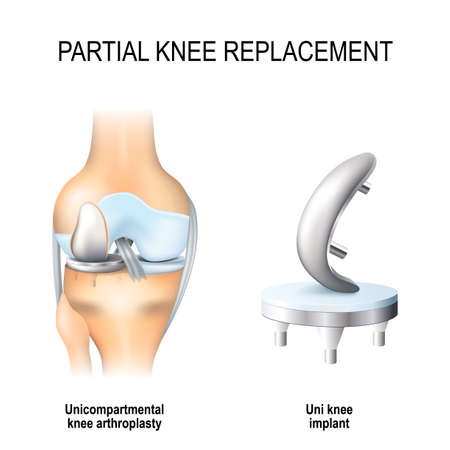 Illustration pour Partial knee replacement. Uni compartmental knee arthroplasty and uni knee implant concept in isolated background - image libre de droit