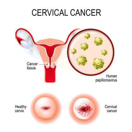 Illustration pour Cervical cancer. vector illustration of the uterus and cervix. Close-up of the Human papillomavirus infection (HPV) that causes diseases. - image libre de droit
