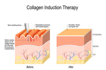 Illustrazione per Collagen induction therapy (microneedling) is a surgical for remove wrinkles, scars, stretch, marks, pigmentation. skin needling procedure, repeatedly puncturing the skin with tiny, sterile needles (microneedling the skin).  - Immagini Royalty Free