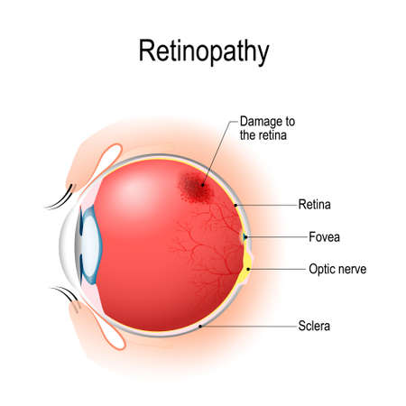 Illustration pour Retinopathy is damage to the retina of the eyes, which cause vision impairment. Anatomy of the human eye. Vertical section of the eye and eyelids. Schematic diagram. detailed illustration. - image libre de droit