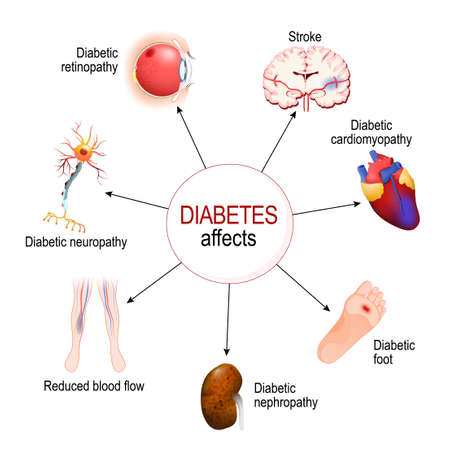 Illustration pour Diabetes Affects. Complications of diabetes mellitus: nephropathy, Diabetic foot, neuropathy, retinopathy, stroke; Reduced blood flow and cardiomyopathy. Vector diagram for educational, medical, biological and science use - image libre de droit