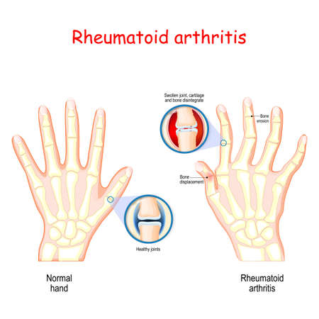 Illustration pour Rheumatoid Arthritis (RA). Healthy hand, and hand with rheumatoid arthritis and typical joint swelling and deformation of the fingers and knuckles. Auto immune disease, inflammatory type of arthritis that usually affects joints.  bone anatomy. vector illustration for medical use - image libre de droit