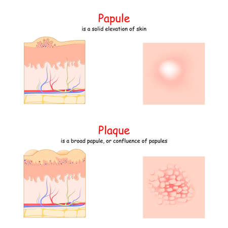 Illustration pour Skin lesion. Papule and Plaque. side and top view. Cross section of the human skin. Papule is a solid elevation of skin. Plaque is a broad papule. - image libre de droit