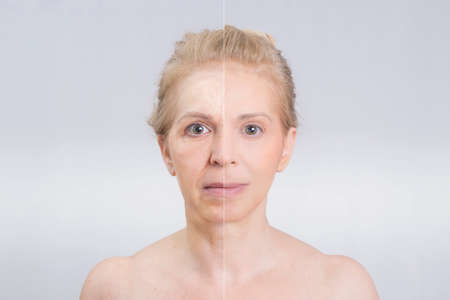 Photo pour Before and after beauty shot in skin treatments - image libre de droit