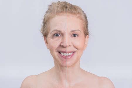 Photo pour Before and after face surgery transformation - image libre de droit