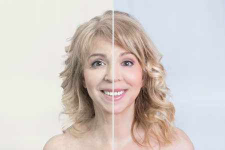 Photo pour Before and after skin treatment shot of a blonde woman - image libre de droit
