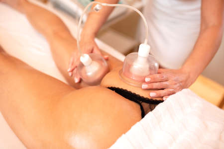 Photo pour Masseuse applying cellulite cupping therapy, concept of cellulite reduction - image libre de droit