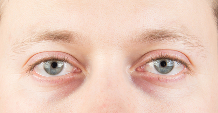 Photo pour Man's tired gray eyes close up - image libre de droit