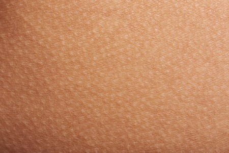 Photo for Goose bumps on human skin closeup. Tecture of skin with goose bumps - Royalty Free Image
